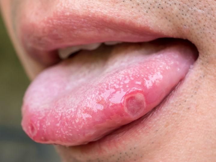 papiloma boca dolor papiloma humano primeros sintomas
