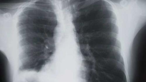 cancerul pulmonar la nefumatori papiloma humano que es virus