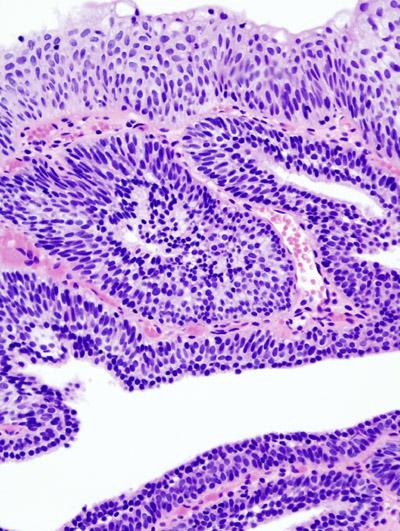 treatment of urinary bladder papilloma papilloma of left eyelid icd 10