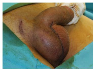 Ejaculare varicoasă testicular