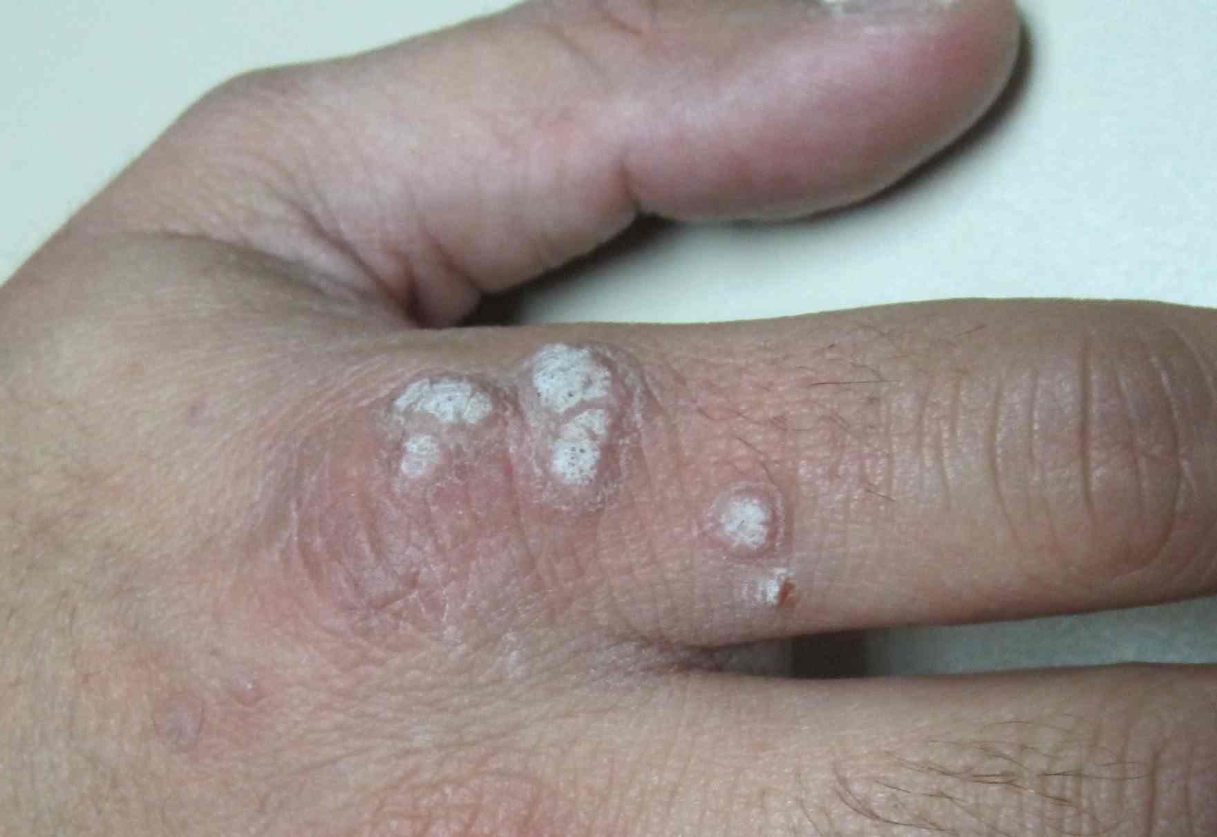 genital warts without hpv virus