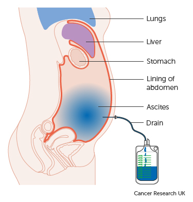 ovarian cancer fluid in lungs cancerul mamar proiect