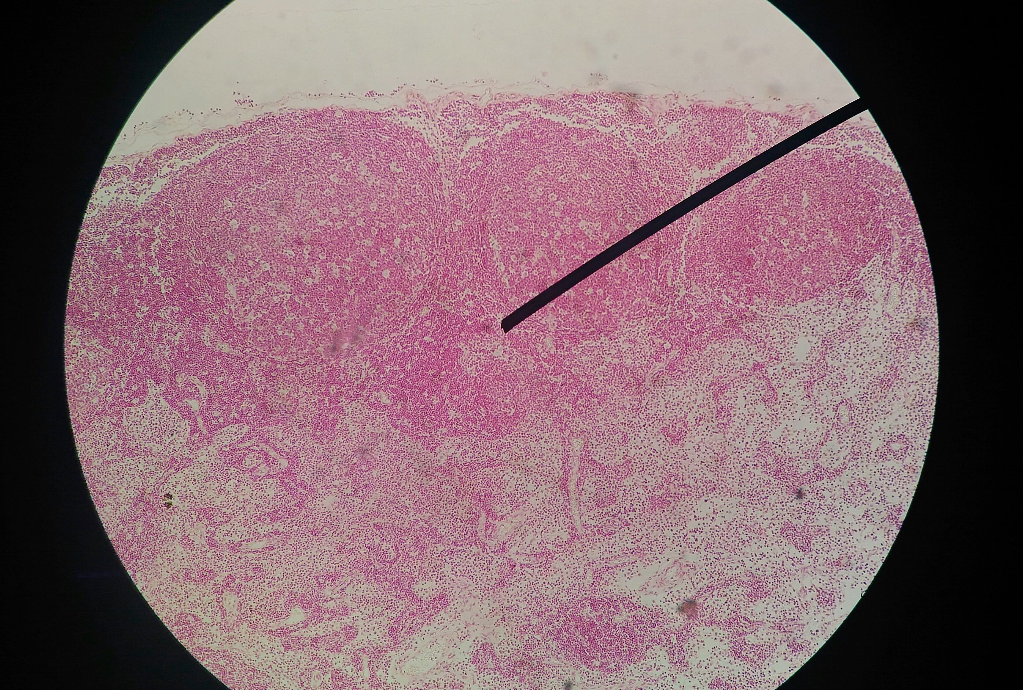 papilloma test sintomi que es papiloma humano resumen