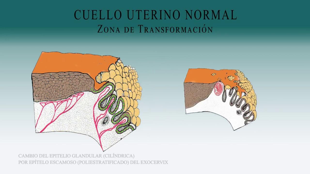 papiloma lingual sintomas papiloma humano en una mujer embarazada