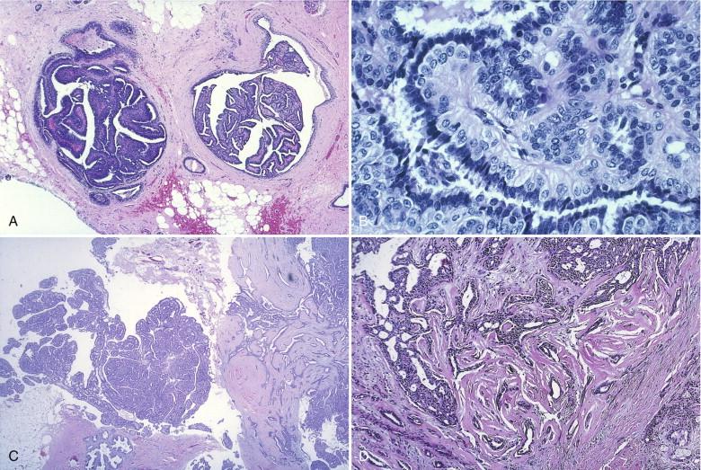 papillomatosis breast cancer risk cancer de pancreas muerte segura