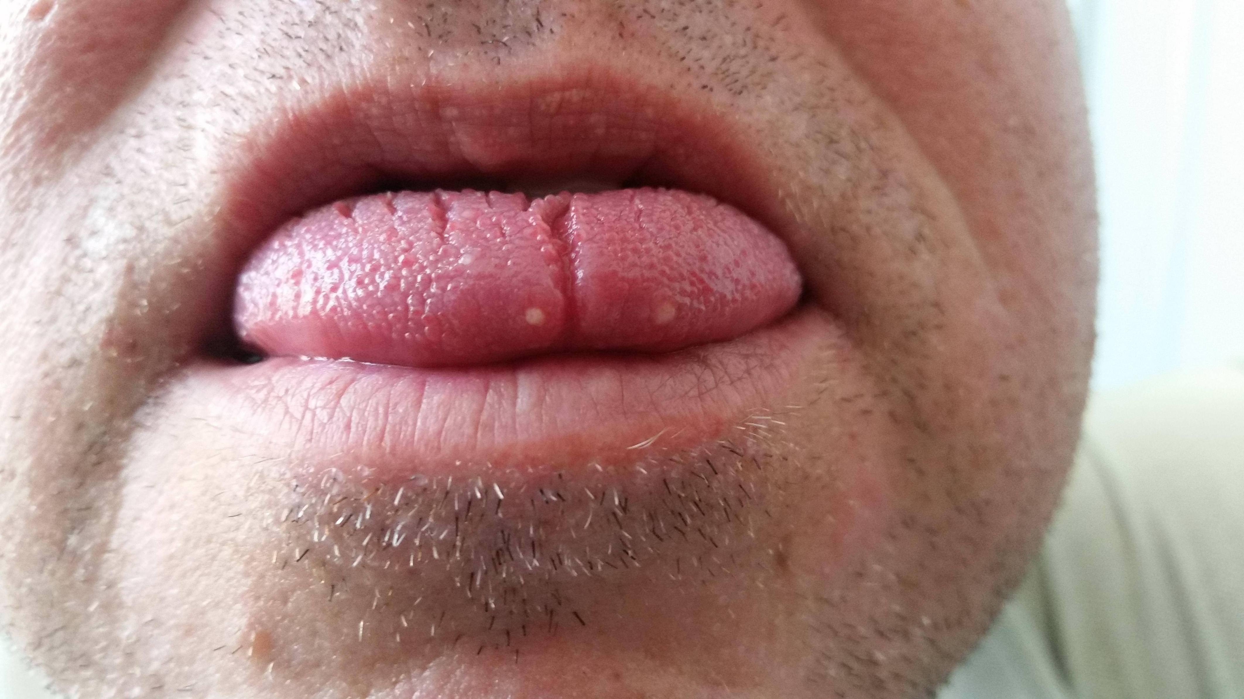 wart tongue bumps