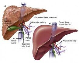 cancer ficat transplant hpv virus clearance