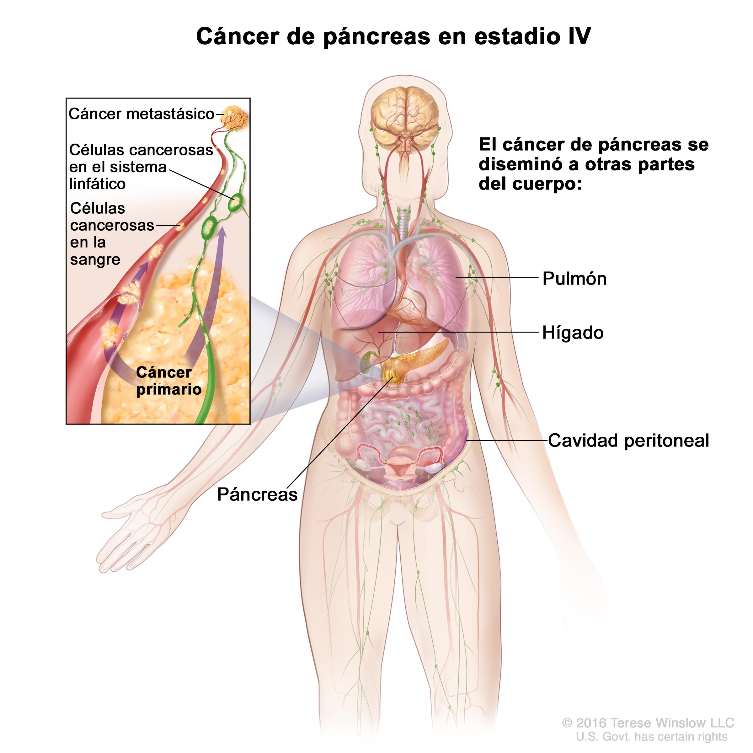 cancer de pancreas metastasis higado il papilloma virus guarisce