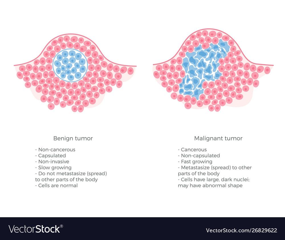 cancer benign or malignant rectal cancer usmle