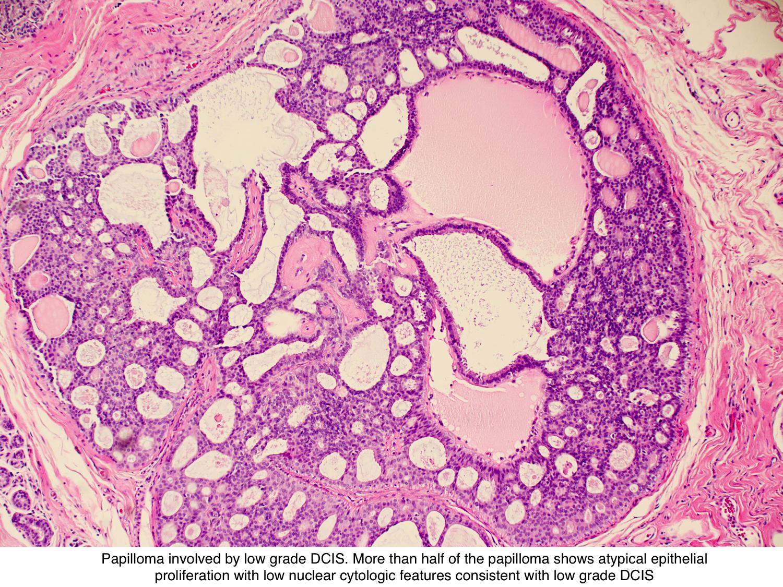 virus papiloma humano en hombres tratamiento hpv virus rectal cancer
