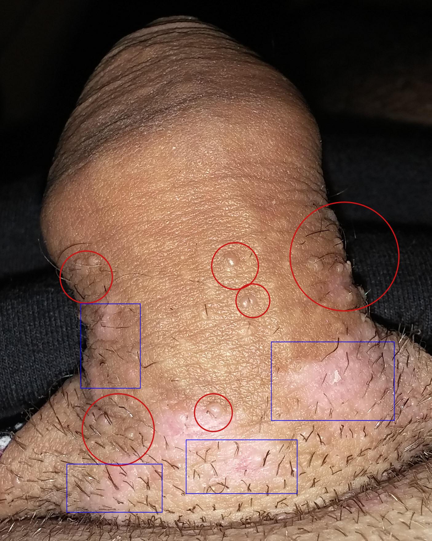 les symptomes du papillomavirus chez lhomme