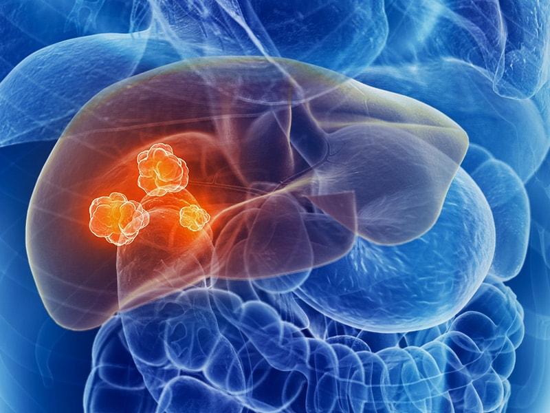 Infectia cu HIV creste riscul de cancere non-SIDA (neasociate SIDA)