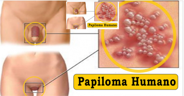 come si diagnostica il papilloma virus nelluomo hpv virus and chlamydia