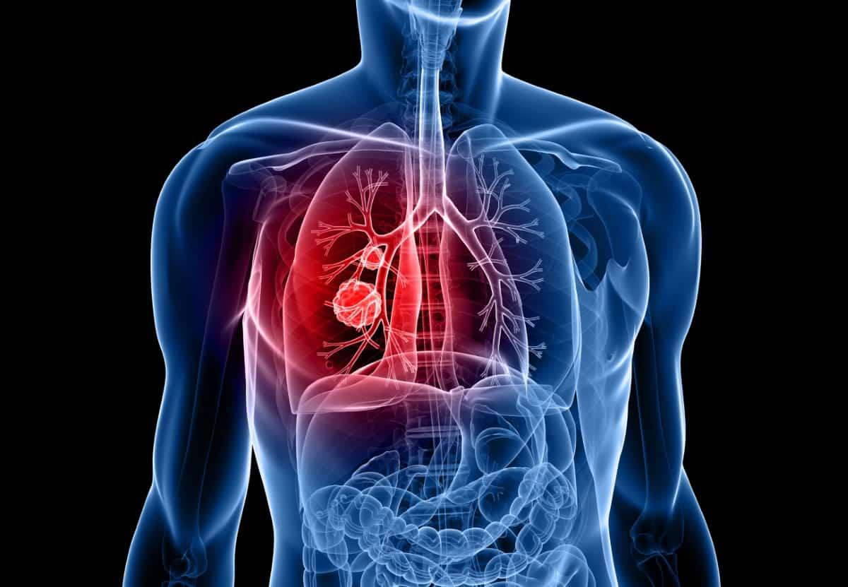 metastatic cancer immunotherapy