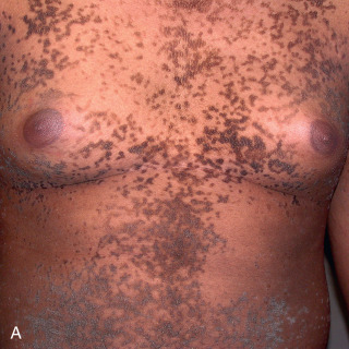 confluent and reticulated papillomatosis diagnose