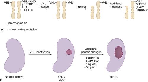 renal cancer vhl