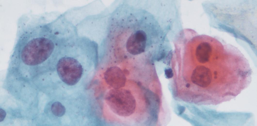 recurrent respiratory papillomatosis causes