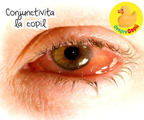 bacterii ale ochiului