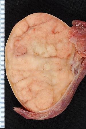 cancer testicular perros sintomas