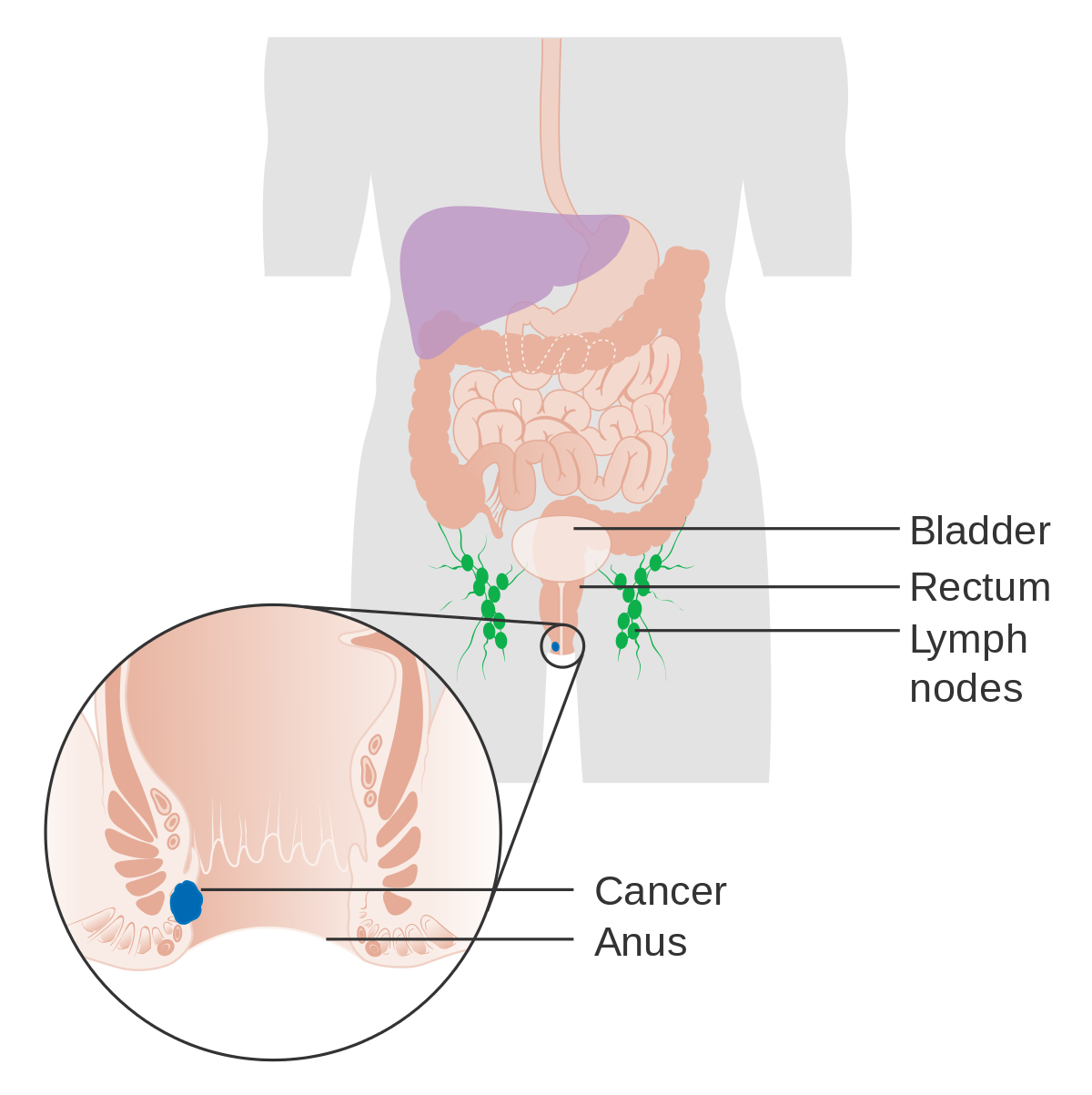 metastatic cancer buttock pain tratament impotriva oxiurilor la adulti