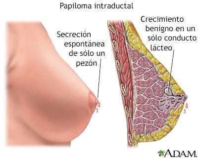 que son los papilomas intraductales paraziti intestinali medicamente