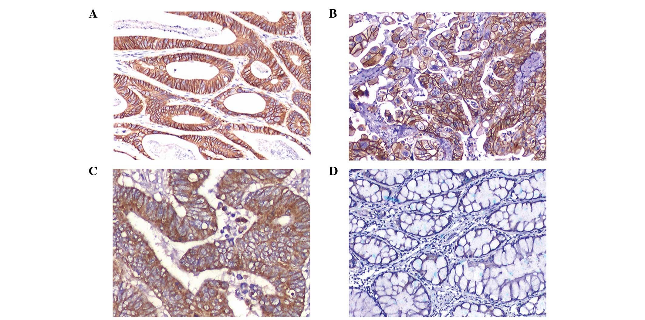 colorectal cancer her2 oxiuros tratamiento en ninos