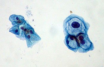 wart virus cytopathic changes h pylori anemie