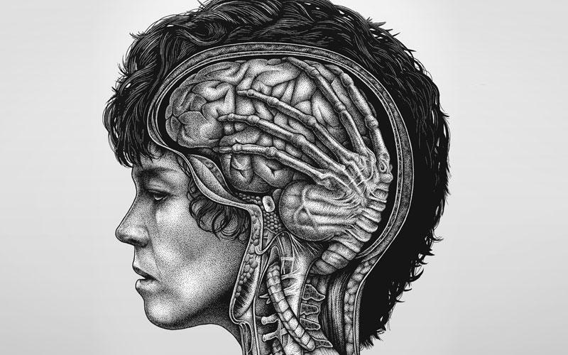 toxoplasmoza cerebrala