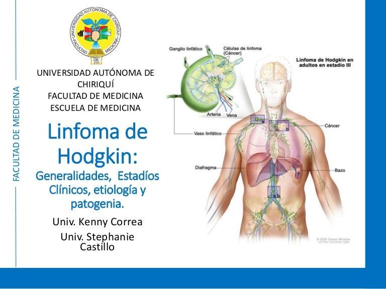 cancer linfatico hodgkin en ninos