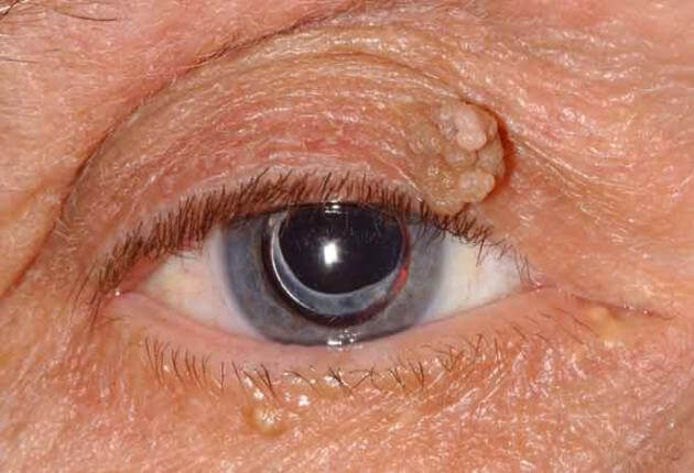eye papilloma symptoms vaccino papilloma virus in farmacia