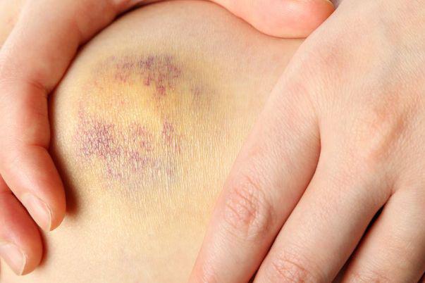 cancer genunchi simptome cervical cancer on nhs