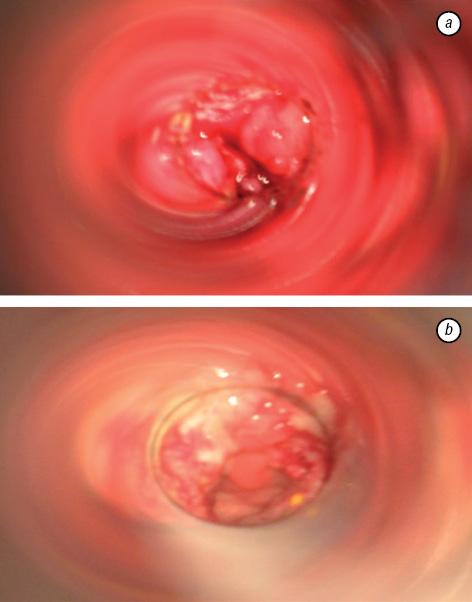 rectal cancer obstruction oxiuros sintomas en hombres