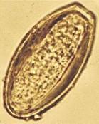 Infectia parazitara cu oxiur la copii: simptome si preventie