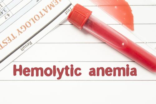 anemie autoimuna