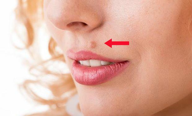 como quitar papiloma de la cara dysbiosis sibo
