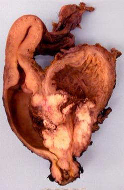 papillary urothelial carcinoma medscape