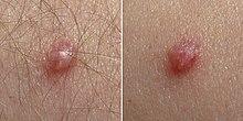 human papillomavirus infection elbow papilloma virus alto rischio cura
