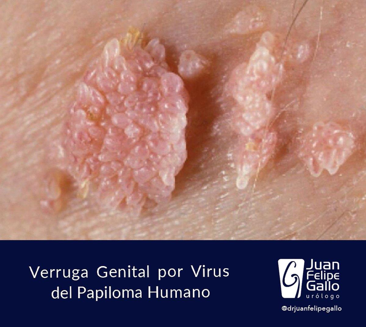 que es papiloma virus humano pvh human papillomavirus genital ulcers