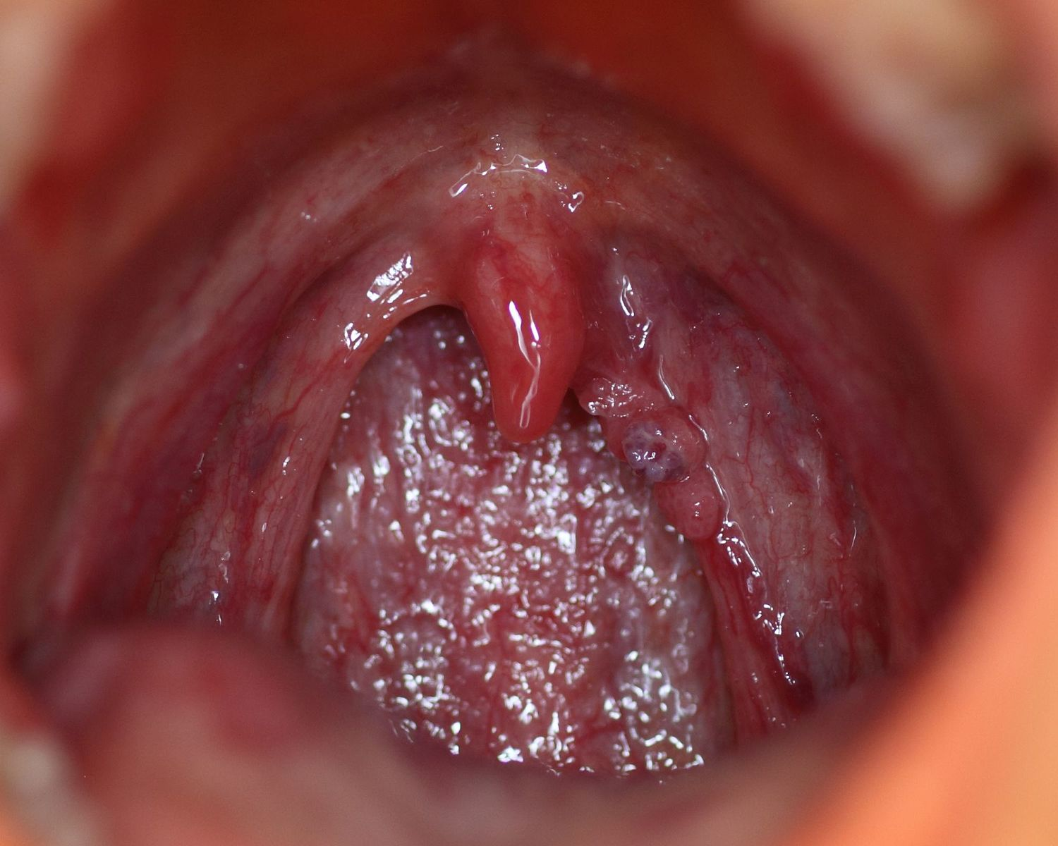 can warts on tongue be treated come si cura il papilloma virus uomo