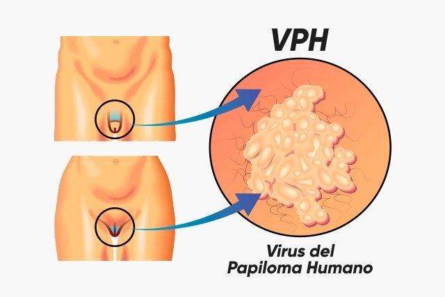 que es el virus del papiloma