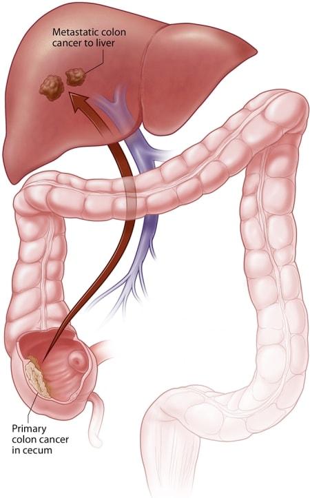 hpv skin lips virus del papiloma humano tratamiento para hombres