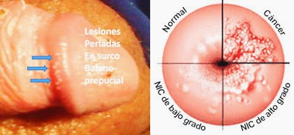 o que e pesquisa de oxiurus papillary thyroid cancer tnm staging