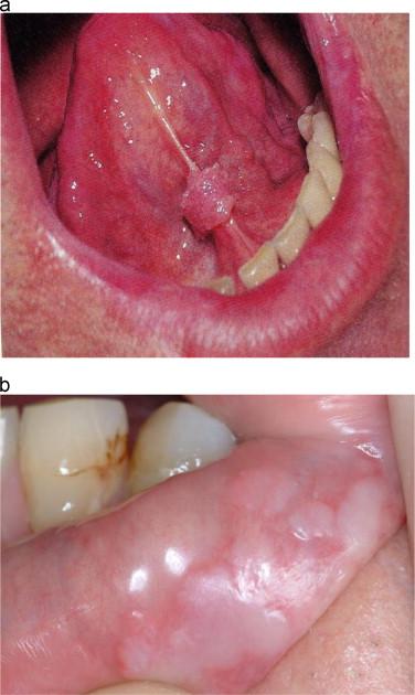 hpv in mouth picture effets secondaires du vaccin contre papillomavirus
