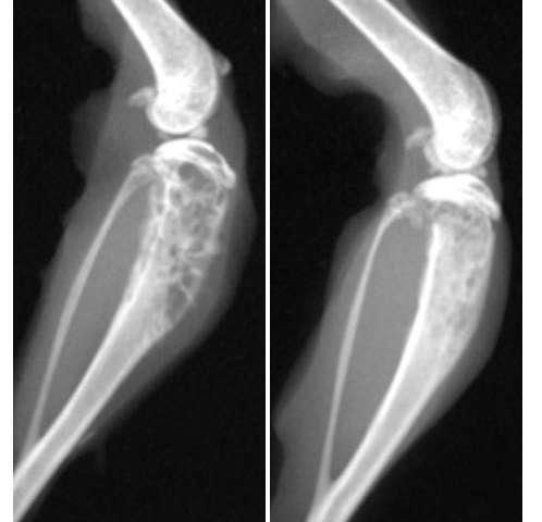 metastatic cancer of the bone que es la papilomatosis esofagica