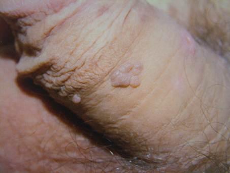 nemi szemolcs papilloma wart virus cytopathic changes