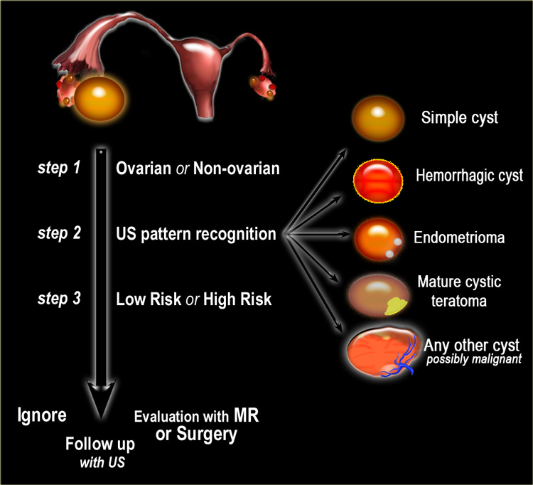 ovarian cancer vs cyst hpv virus zellveranderung