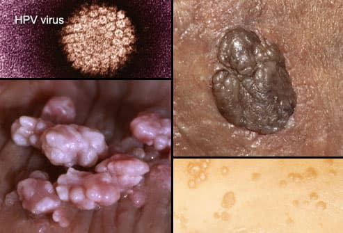 hpv herpes pictures
