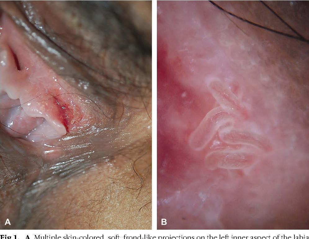 papilom intraductal trebuie operat hpv tedavisi olan varm?