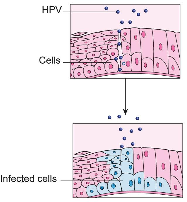 hpv cancer cells cancerul cervical simptome