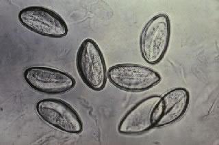 papiloma virus como se transmite virus hpv penyebab kutil kelamin